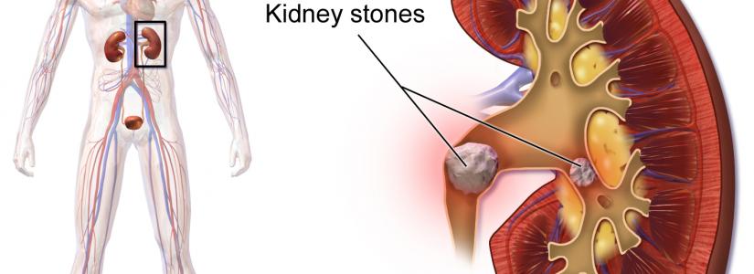 nierstenen behandelen met homeopathie van Zemi Oldenzaal