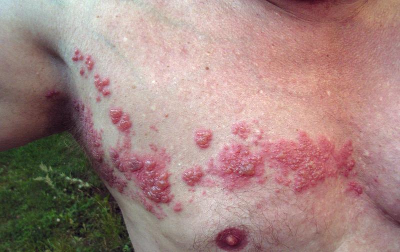 Herpes Zoster? Bezoek een klassiek homeopaat