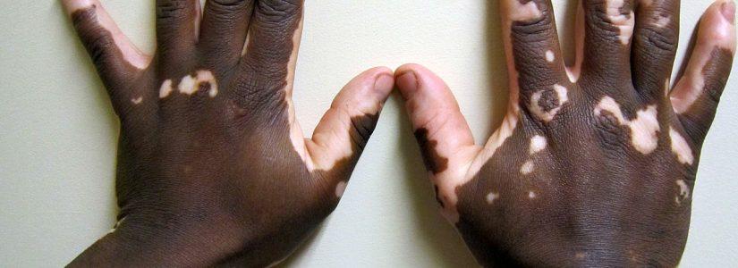 Vitiligo: Homeopathie kan wellicht voor uw wat betekenen.