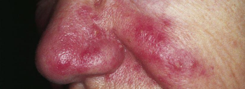 Rosacea laten behandelen door een klassiek homeopaat R.H.