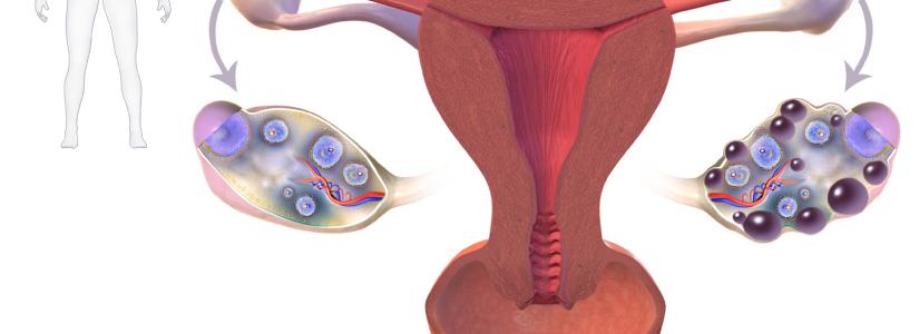 Polycysteusovarium syndroom (PCOS). Kan homeopathie ook een therapie zijn?